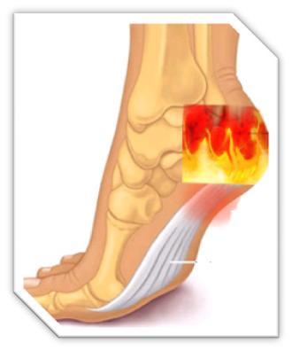 De ce rănesc articulațiile călcâiului, Dureri de calcai: principalele cauze ale aparitiei - Eczemă
