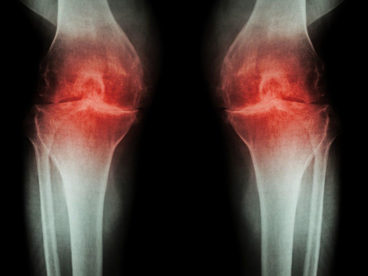 dureri articulare din ceaiul ivan blocarea articulațiilor cu artroza