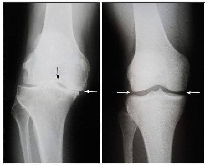 de ce se strâng articulațiile genunchiului