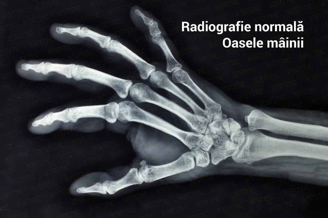 tratamentul articulațiilor mâinii