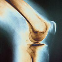 Tratamentul durerilor de genunchi cu homeopatie