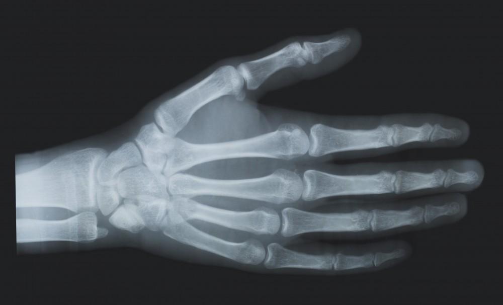 leziuni articulare osoase