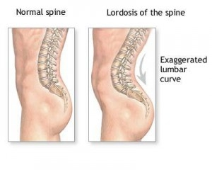 tratamentul bolilor coloanei vertebrale și articulațiilor cu karipaină meniscus vătămare lacrimă menisc