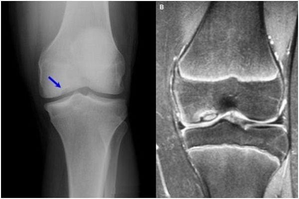 artroza post-traumatică a genunchiului 2 grade