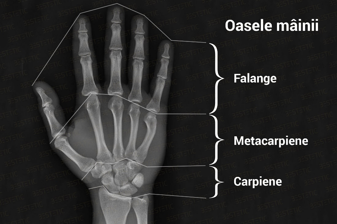 Sudarea oaselor | Recuperarea dupa o fractura