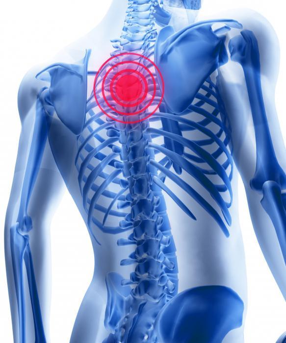 Osteochondroza unguentă a coloanei vertebrale toracice