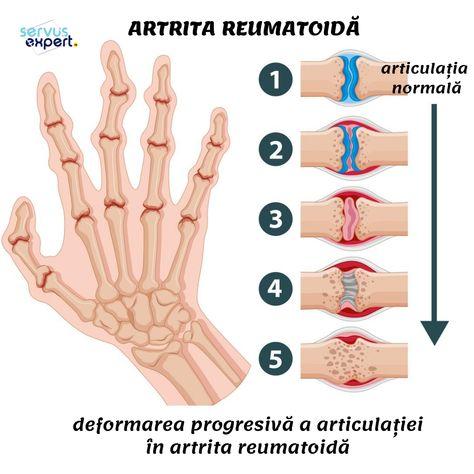 Decoctul inflamației articulare. Cum se manifesta artroza la nivelul mainilor?