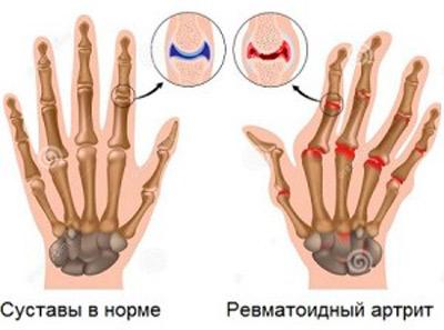 leucocitoză cu inflamația articulațiilor coapse dureroase