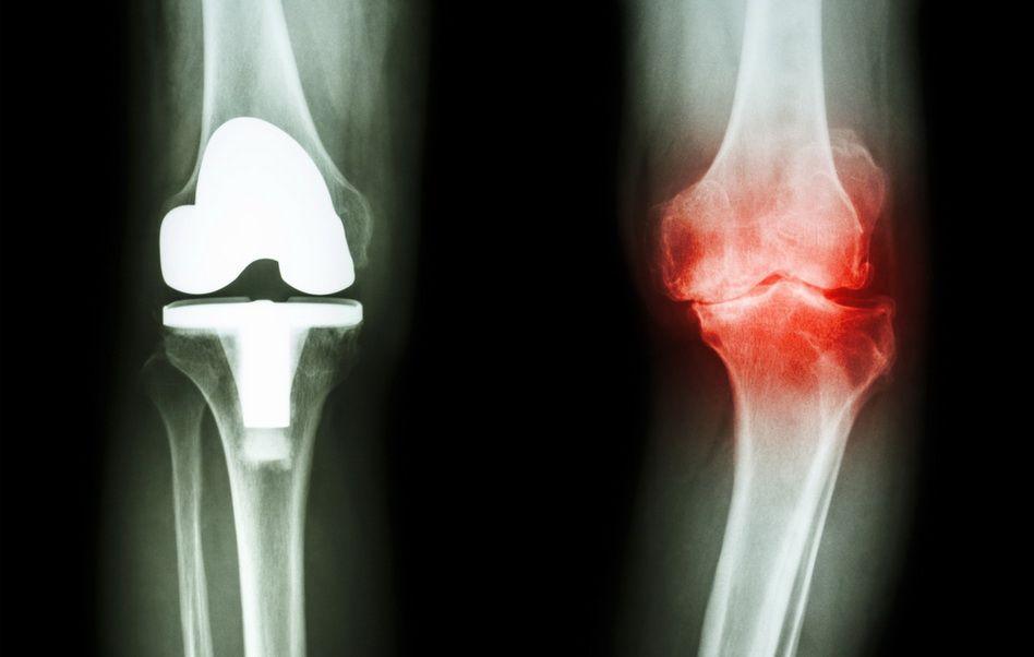 are cineva vindecat artroza genunchiului după întindere, articulația șoldului doare