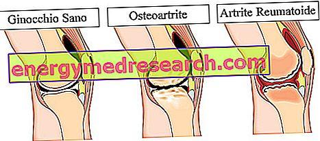 amelioreaza artroza inflamatiei articulare
