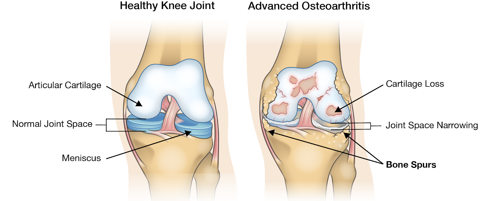articulația iese din genunchi boala esoterica a articulatiilor