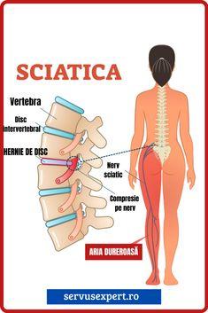 articulația sciatică doare