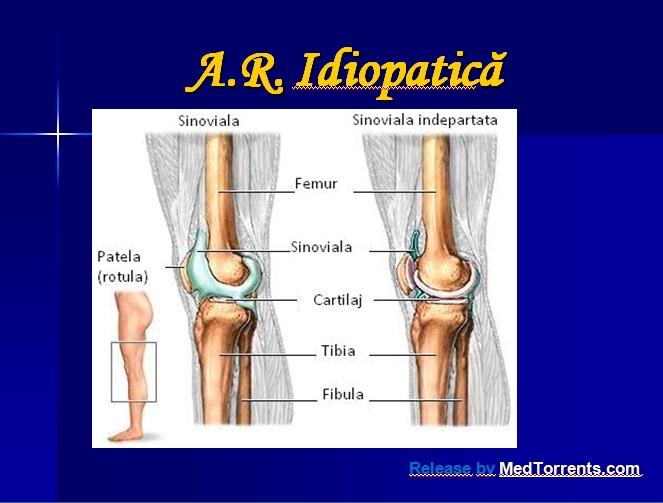 Cauzele bolii. Artrita reumatoidă juvenilă