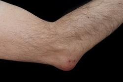 artrita bursitei articulare a cotului