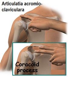 Trata artrita claviculara. Artroza articulației acromio-claviculară