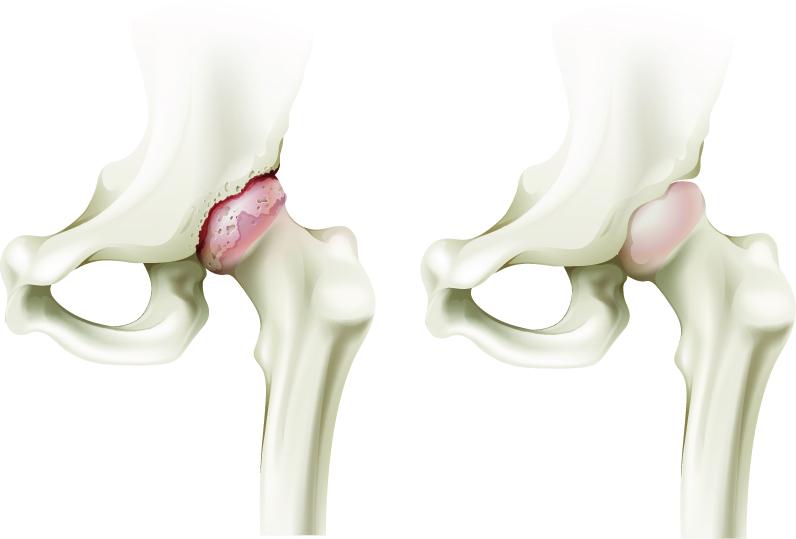 Artroza deformantă a articulației șoldului stâng