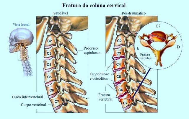 Ce este artroza si cum se manifesta ?