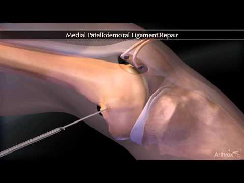 când articulația umărului doare dureri articulare pe partea stângă a corpului