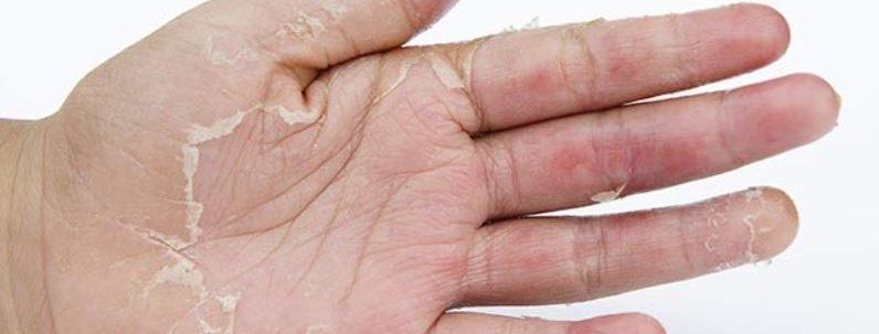 medicament pentru capsule articulare cum să consolidezi articulațiile cu artroza