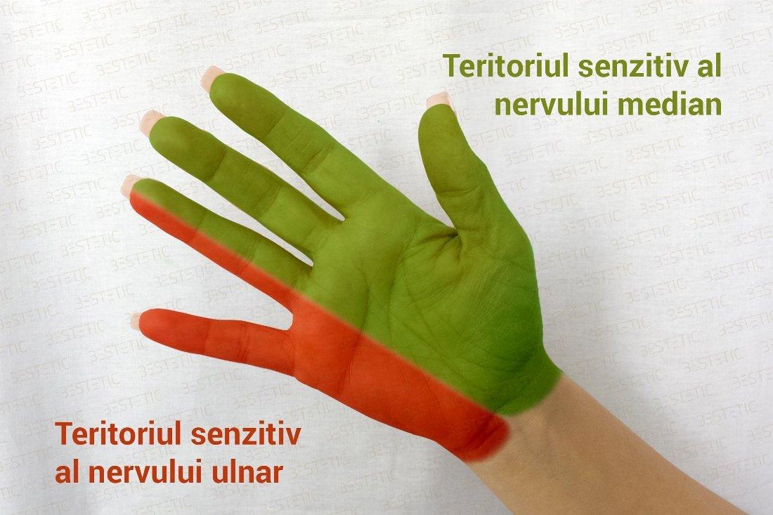 amorteala degetelor