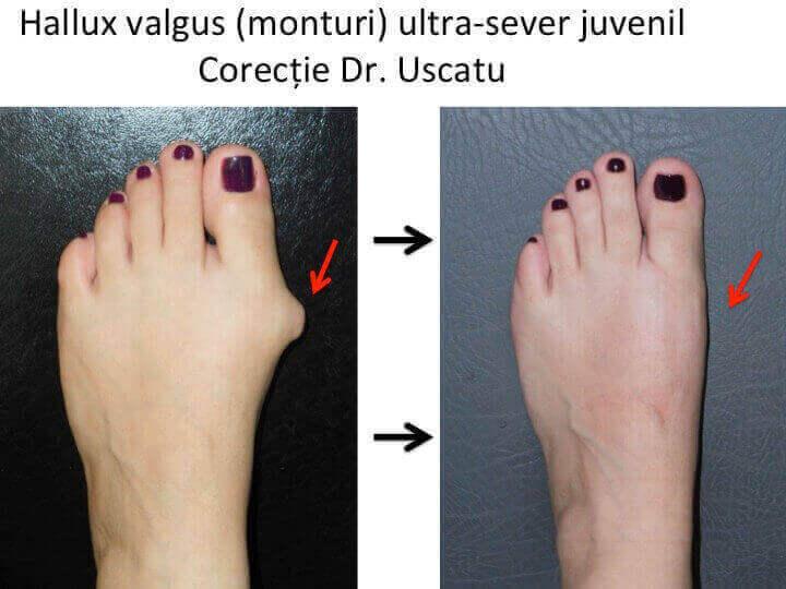 tratamentul comun al degetelor de la picioare
