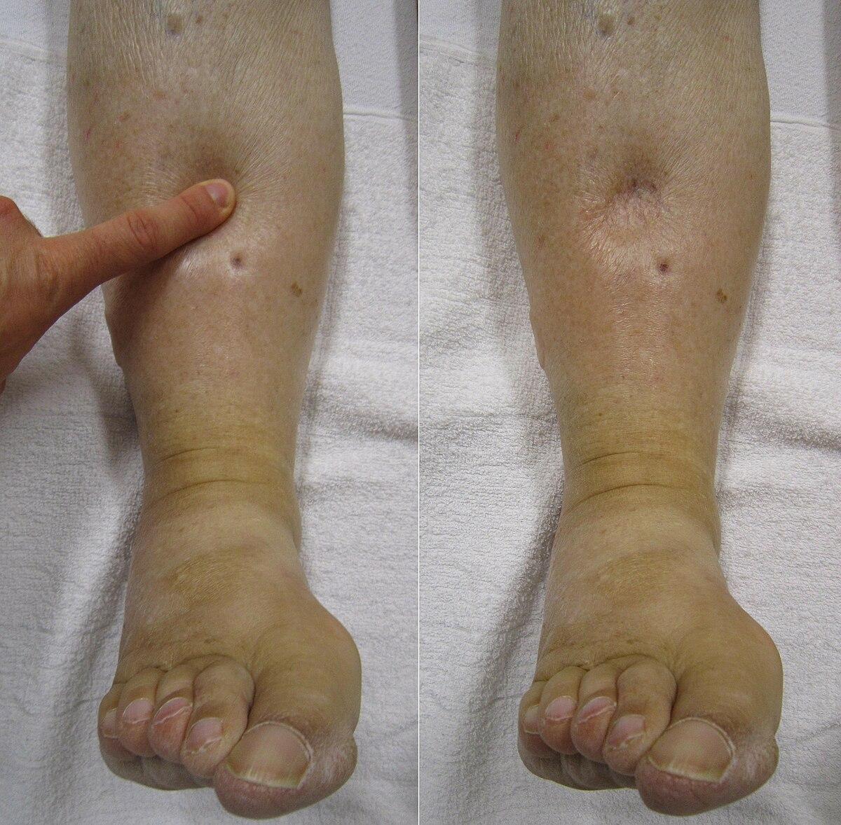 bate boala articulară ce este