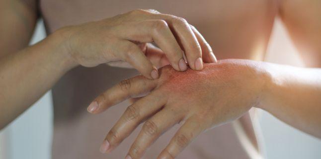 cum să tratezi artrita psoriazisului