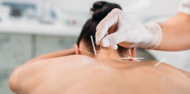 tratament articular acupunctura durere după simptomele de înlocuire a șoldului