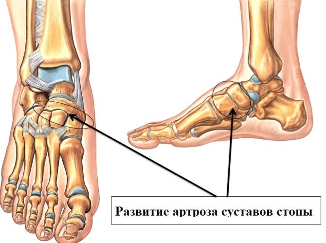 boli ale articulațiilor picioarelor la adolescenți
