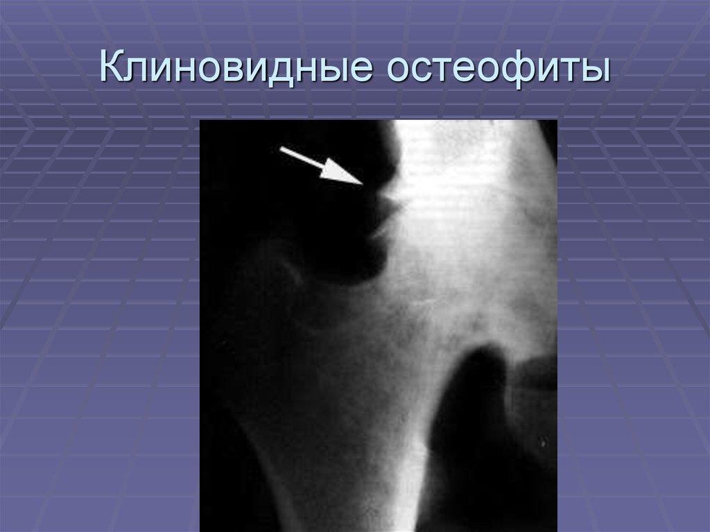Boli ale sistemului musculo-scheletic și cauzele țesutului conjunctiv - sfantipa.ro