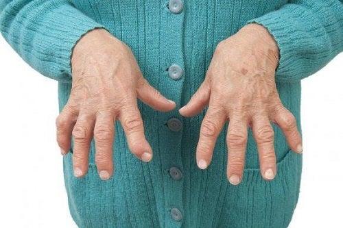 Remediu chinezesc la fel de eficient împotriva artritei ca un medicament
