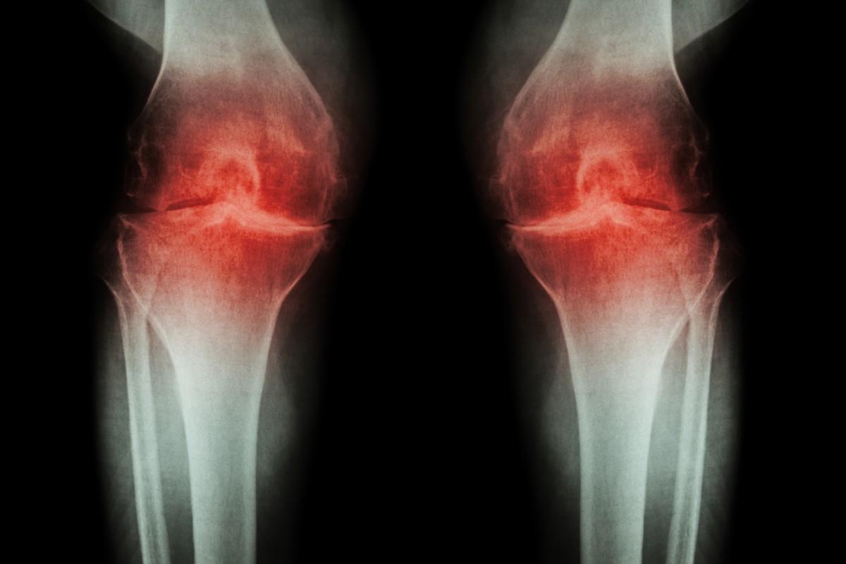 articulații congestive decât pentru a trata dureri de genunchi cu febră