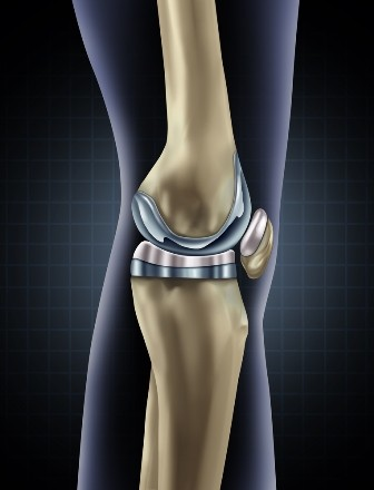 calmante pentru gonartroza articulației genunchiului