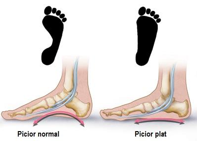 de ce articulațiile doare din carne metode de tratare a articulațiilor pe picioare