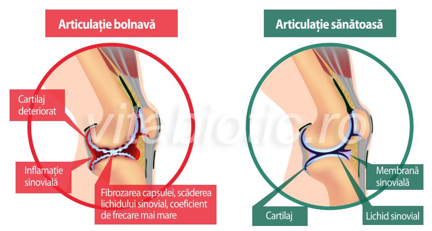 Ce este deteriorarea capsulelor articulare? ulei de măsline pentru boala articulară