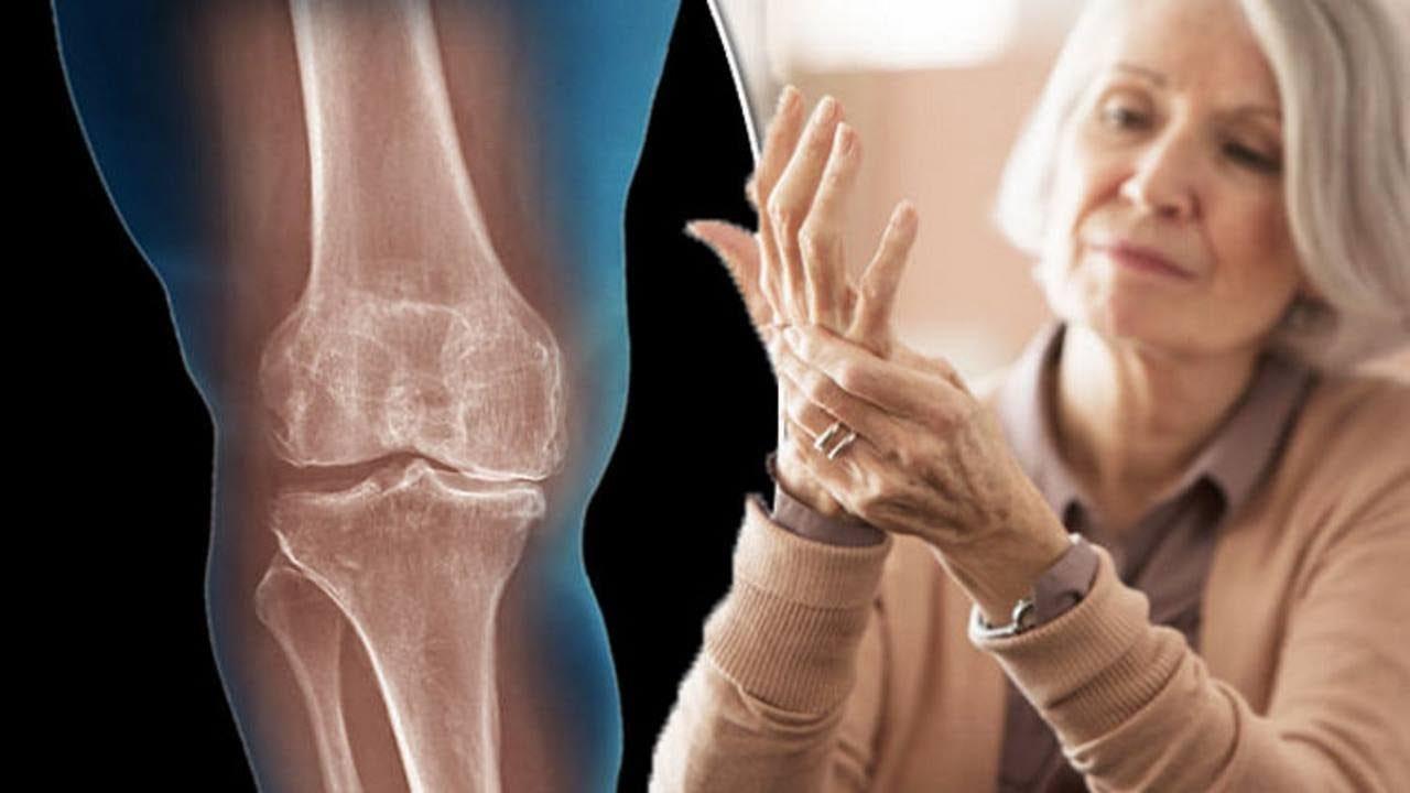 de ce rănesc articulațiile gleznei după alergare tratamentul rupturii tendonului mușchiului supraspinat al articulației umărului