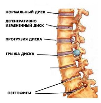 ce medicamente pentru a trata osteochondroza coloanei vertebrale dureri de crăpătură articulară