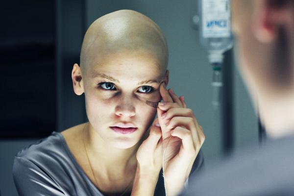Dureri articulare după chimioterapie - Carcinomul
