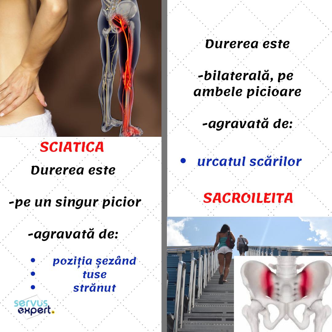 Tratamentul artrozei Khimki