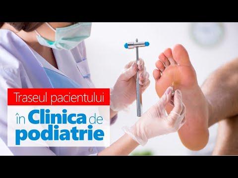 Condroprotectoare pentru artrita articulației încheieturii - sfantipa.ro