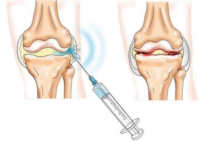 dacă articulațiile doare în timpul întinderii artrita cu fascicul de perie