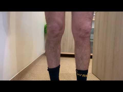 cum se tratează artroza terry