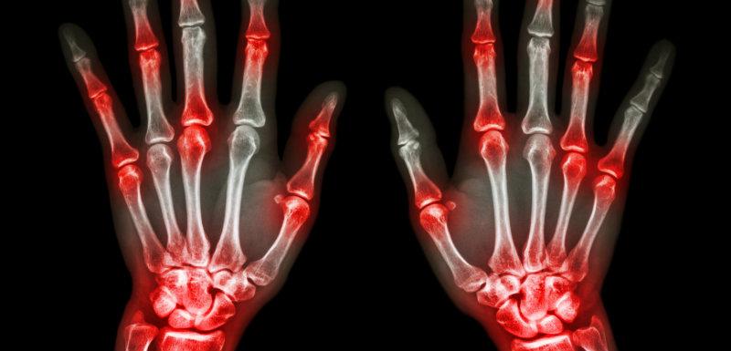 tratamentul artrozei primei articulații carpiene