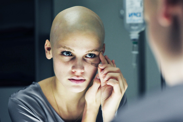 Picioarele dureroase dupa chimioterapie, ce sa fac - Angiom November