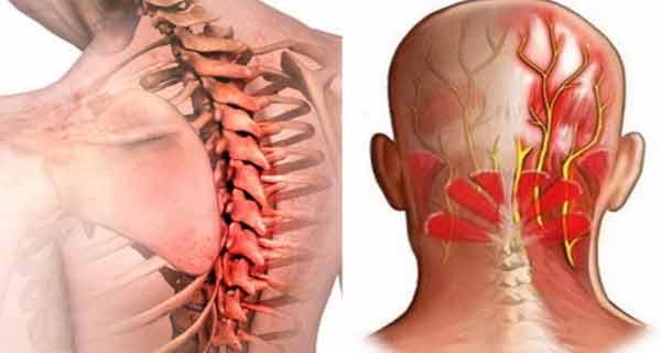 inflamația pastilelor articulațiilor umărului