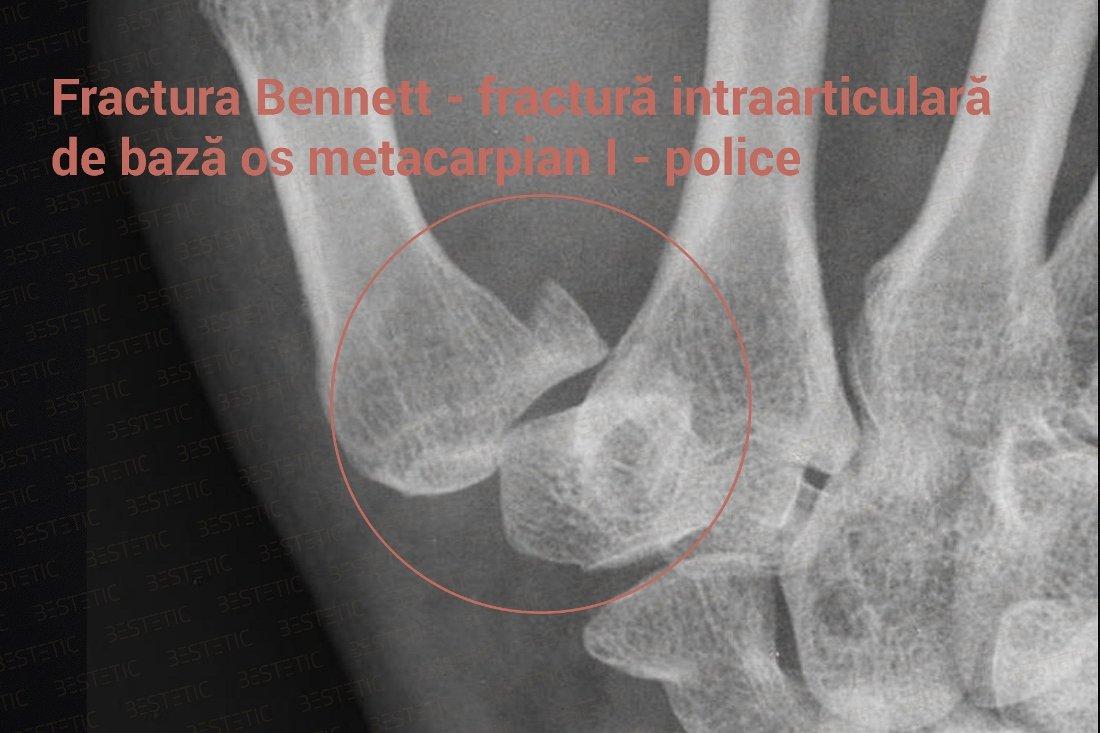 8iacc > ameliorarea durerii dupa fractura osoasa durere musculară bruscă a genunchiului