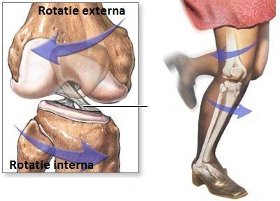 Ruperea ligamentului intern al tratamentului articulației genunchiului. Ruptura de ligamente
