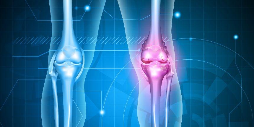 trata artroza cu un ortoped poate răni articulațiile tiroidiene
