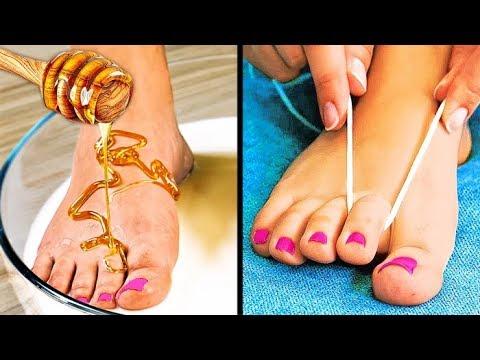 umflături în articulațiile genunchiului