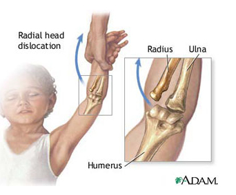 dacă mâinile din articulațiile cotului doare
